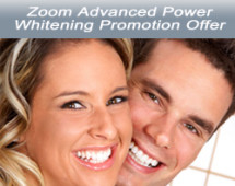 Zoom Whitening Promotion Offer